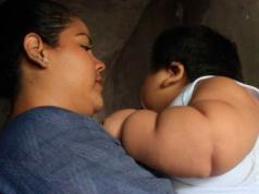 Bebé-Kilos-Enfermedad-Síndrome-de-Prader-Willi-Nene-Tecomán-Colima-Salud-Luis-Manuel-González-Pantoja