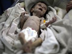 Siria-Guerra-Muerte-Niños-Beba-Desnutrición-Hambre-Crisis-Sahar-Dofdaa