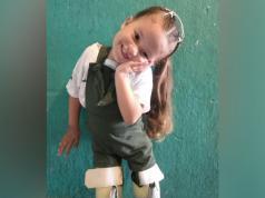ana bella vazquez amputada nena cordoba piernas