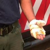 bombero-voluntario-manos-quemadas-incendios-sierras-cordoba